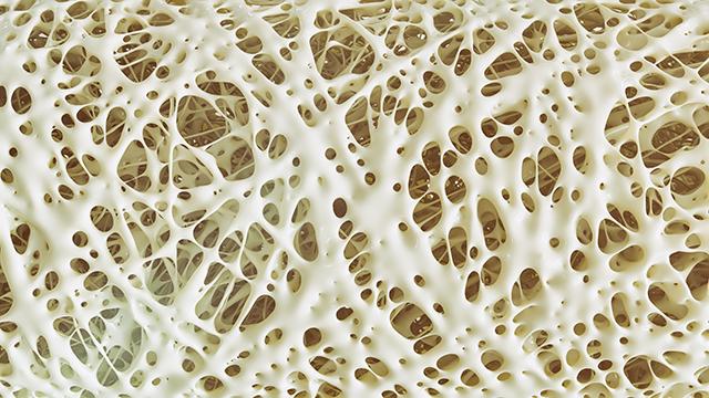 bone disease articles